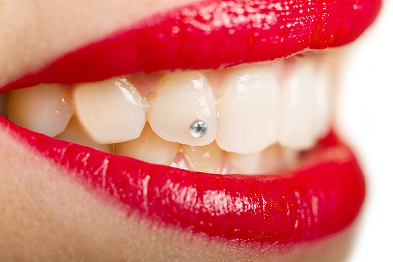 Brillantino al dente, ci sono dei rischi per la salute?